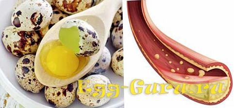 можно ли есть перепелиные яйца при высоком холестерине